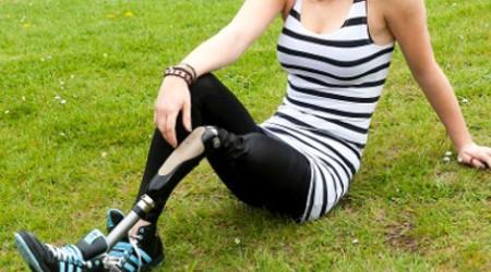 Žena s protézou